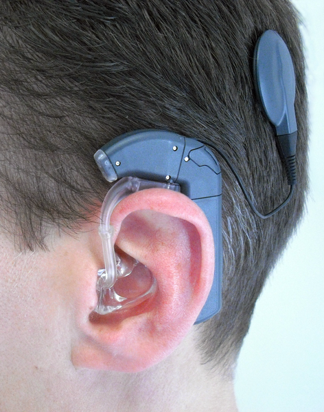 the pros and cons of cochlear prosthesis