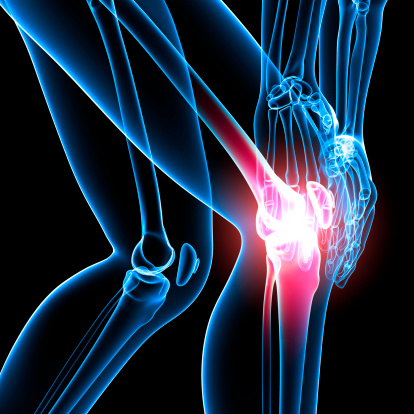 490645475-illustration-of-knee-pain-gettyimages