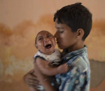 Jose, un enfant frappé par le syndrome Zika, au Brésil. (Photo: Felipe Dana/AP)