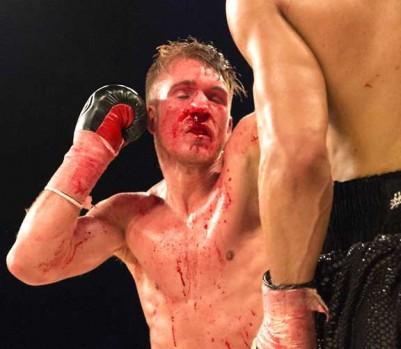 Nick Blackwell, lors de son combat contre Chris Eubank Jr. (Photo: Ray Tang/LNP/REX/Shutterstock)
