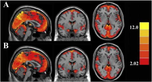 Résonance magnétique du cerveau montrant les zones impliquées dans une étude portant sur les acouphènes. Source: Open-I.